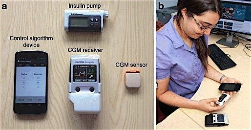 Cambridge-Universtiy-artificial-pancreas-insulin-pump-diabetes-EDIWeekly